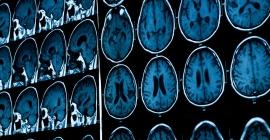 Neuroradiology images
